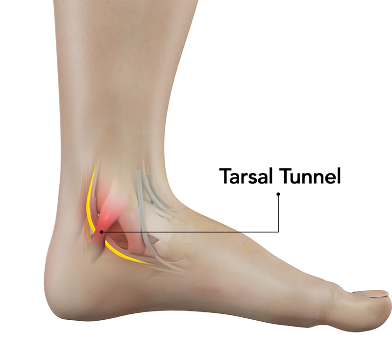TTS can result in permanent and irreversible nerve damage, leading to worsening pain and even loss of motor function